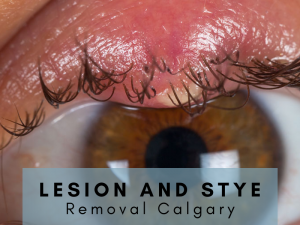 Lesion and Stye Removal Calgary