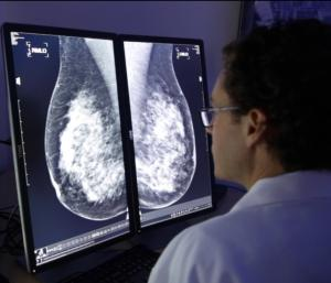Mammography Image at CureMetrix